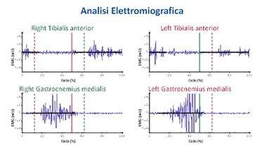 emg frequenze attivazione muscolare