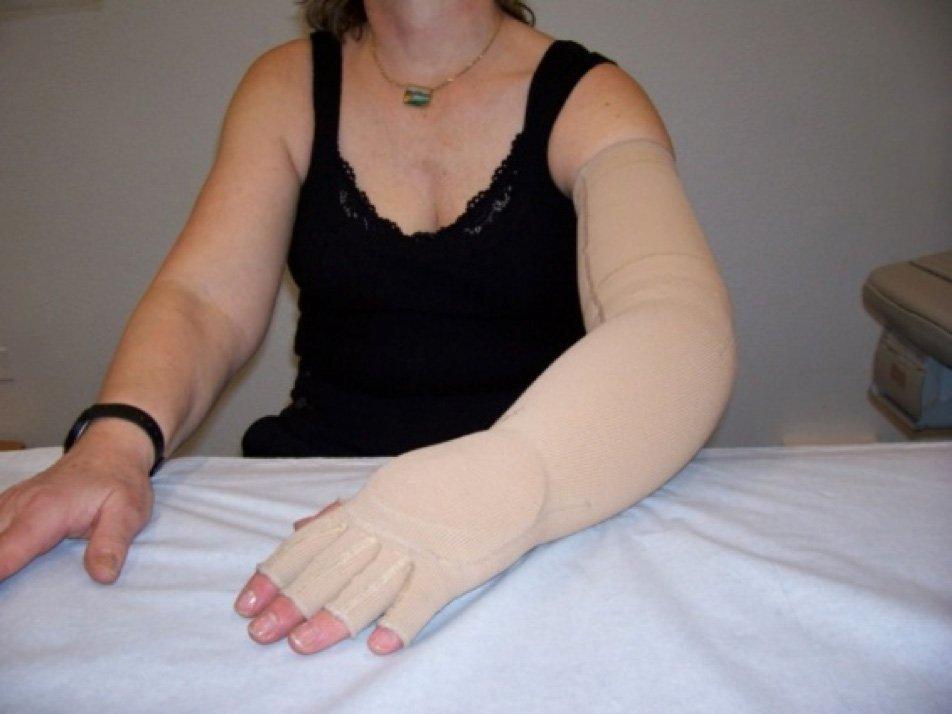 bracciale con palmare elastocompressivo su misura