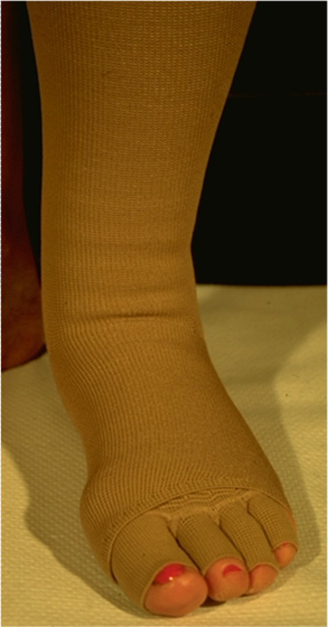 gambale elastocompressivo su misura