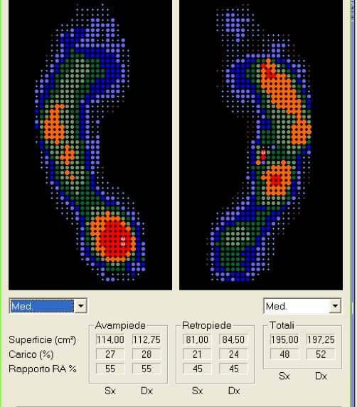 Esame baropodometrico dinamico | Orthesys Milano