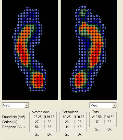 Esame baropodometrico dinamico post riabilitazione | Orthesys Milano
