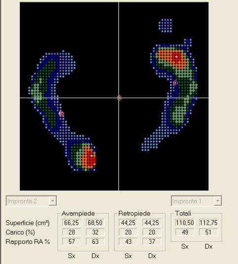 Baropodometrica Statica Orthesys