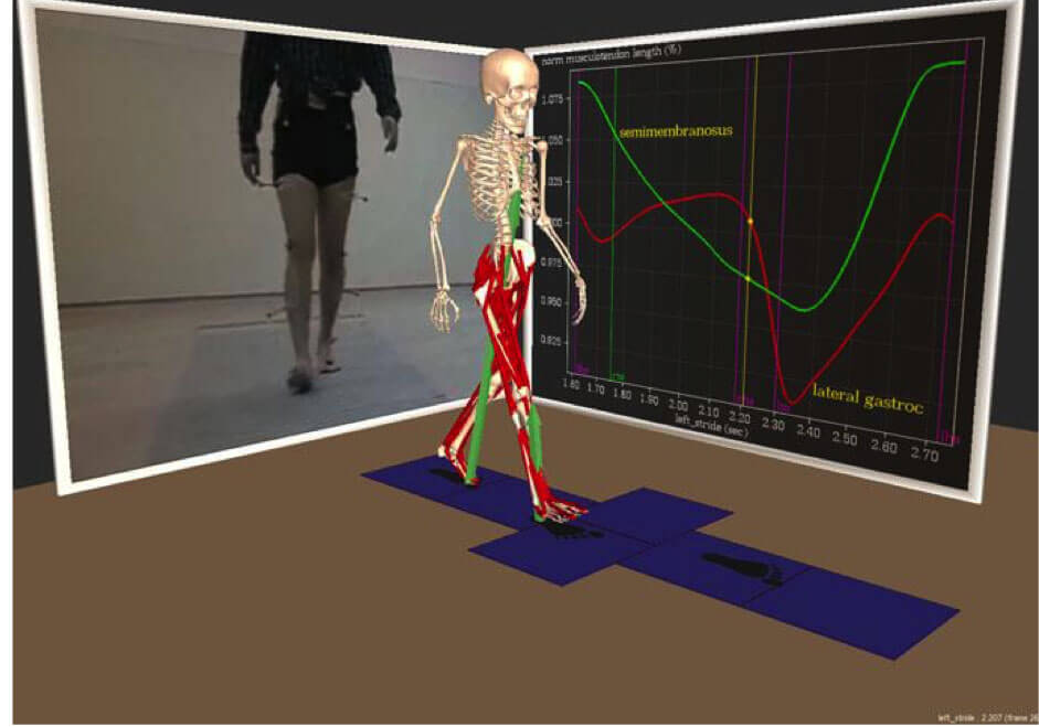 Gait Analysis Optoelettronica