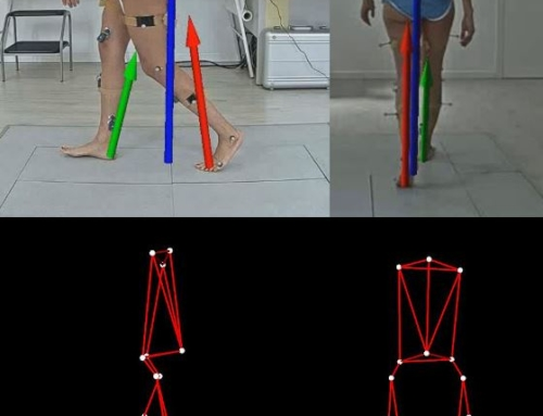 gait analysis – ortopedia oncologica