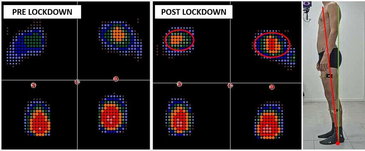 baropodometria pre e post lockdown