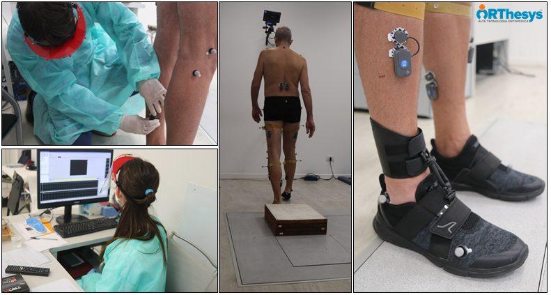 Valutazione con gait analysis di pazienti Covid