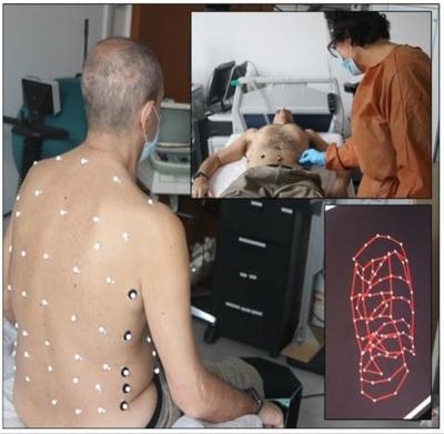 Pletismografia optoelettronica pazienti covid